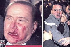 Berlusconi aggressione