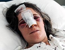 Marinella Alotto ferita