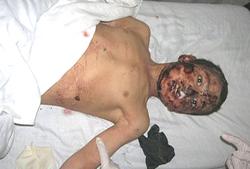 Nato victim 1