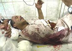 Falluja victim