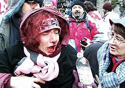 Nicoletta Dosio ferita a Venaus nel 2005