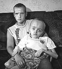Chernobyl deformità
