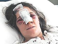 Marinella Alotto, attivista No-Tav ferita dalla polizia
