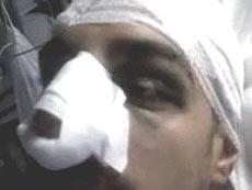 manifestante No-Tav ferito dalla polizia a Chiomonte