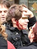 Un ragazzino ferito, in Spagna