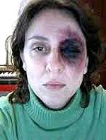 Ester Quintana, sfigurata e resa invalida dalla polizia iberica