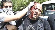 Turchia, la feroce repressione della polizia di Erdogan