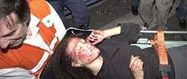 Una ragazza massacrata di botte dalla polizia alla Diaz
