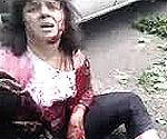 Est Ucraina, una donna ferita dai bombardamenti