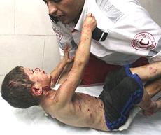 La tragedia dei bambini di Gaza
