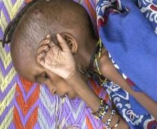 Repubblica Centrafricana, fame